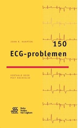 Afbeeldingen van 150 ECG-problemen